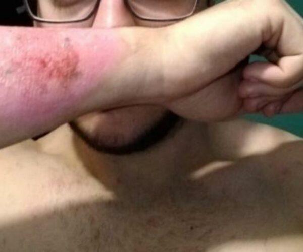 Se quita un tatuaje con un rallador de queso.